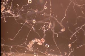 Pythium zoospores